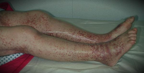 итц симптомы на ногах