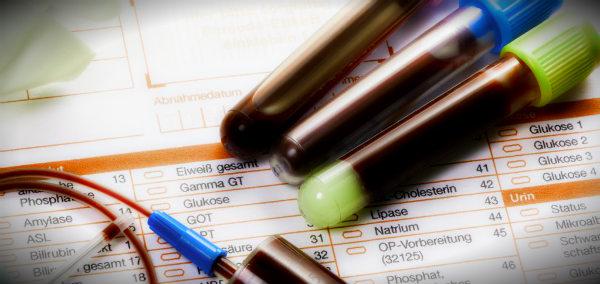 иммунограмма пробирки на столе