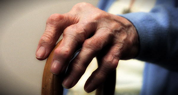 рука ревматоидный артрит