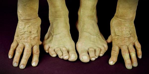 артрит руки ноги