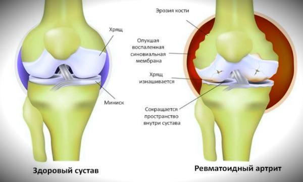 ревматоидный артрит схема