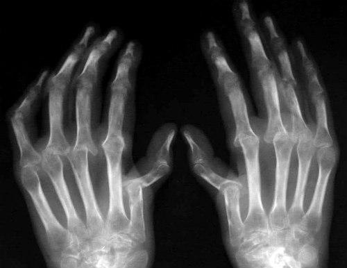 ревматоидный артрит руки снимок