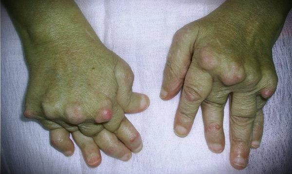 артрит осложнения