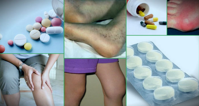 медикаментозное лечение артрита