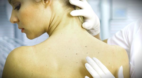 дерматолог осмотр кож на спине