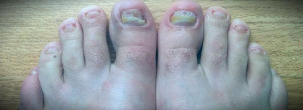 шрибок ногтей из-за сырой обуви