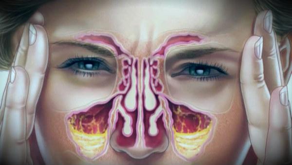 хронический насморк схематично