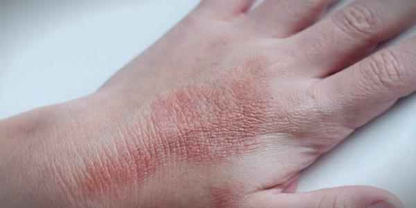 осенний дерматит на руках