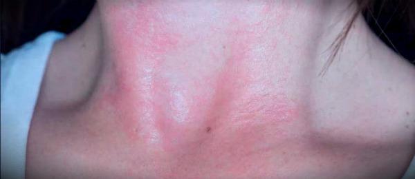 холодовой дерматит на шее