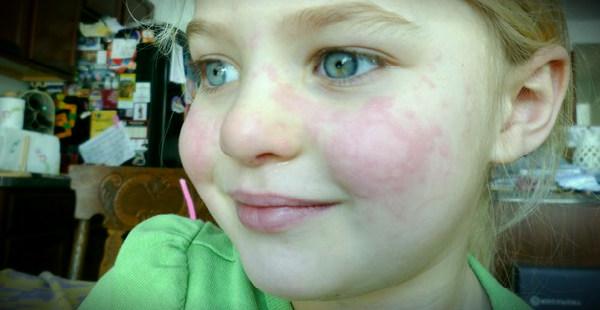 холодовой дерматит у детей